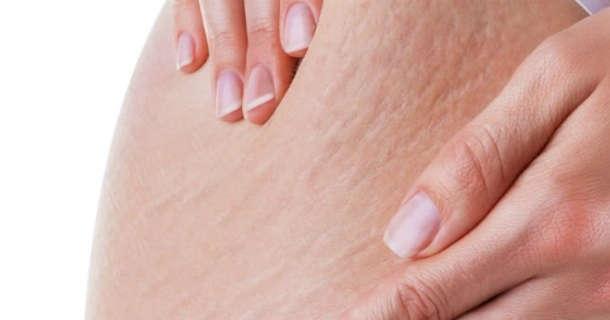 Sprawdzone sposoby na cellulit