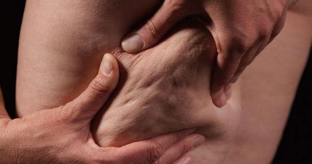 cellulit u mężczyzn