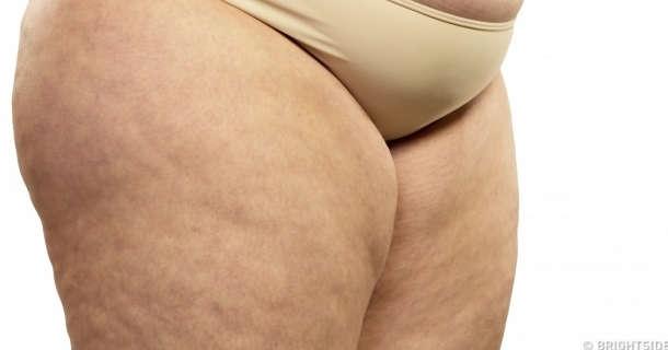 Cellulit - przyczyny indywidualne i medyczne